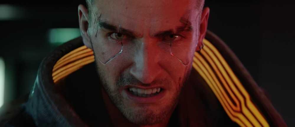 Limited Xbox One X auf Cyberpunk 2077 leuchtet im Dunkeln und wird vor dem Spiel veröffentlicht